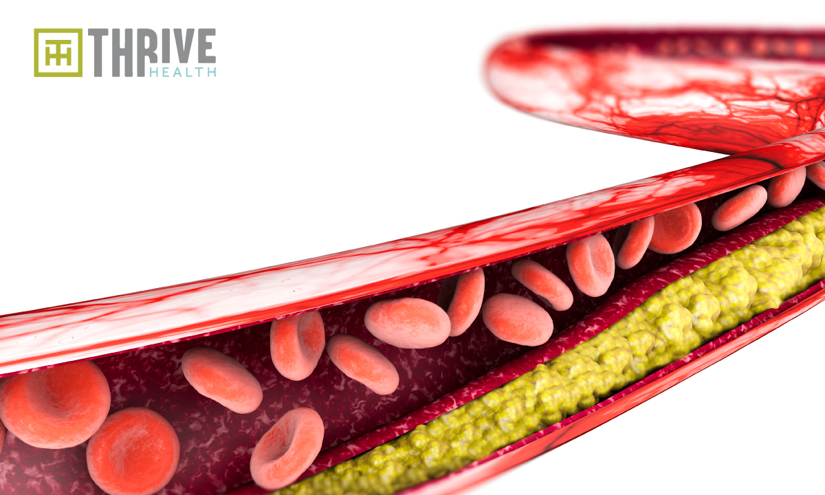 Cholesterol: Friend or Foe?